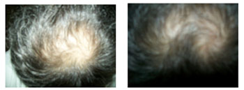 Результат лечения расческой Soliton